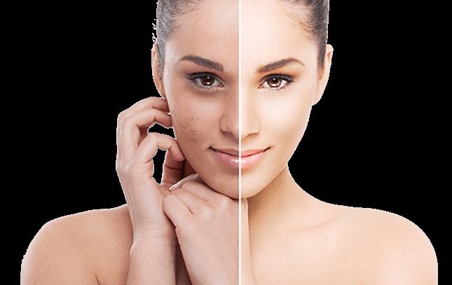 Mezoterapia - Po lewej stronie kobieta z podniszczoną skórą, po prawej kobieta z wygładzoną i idealną cerą